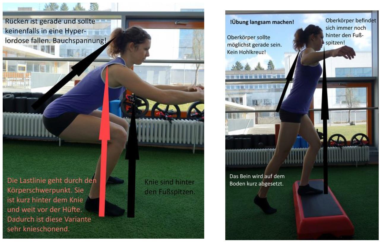Knickt nach hinten weg knie Kniegelenkinstabilität